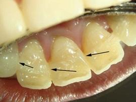 Шинирование (укрепление) зубов в Запорожье