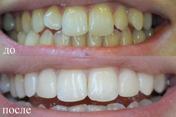 Можно ли поставить виниры на один зуб