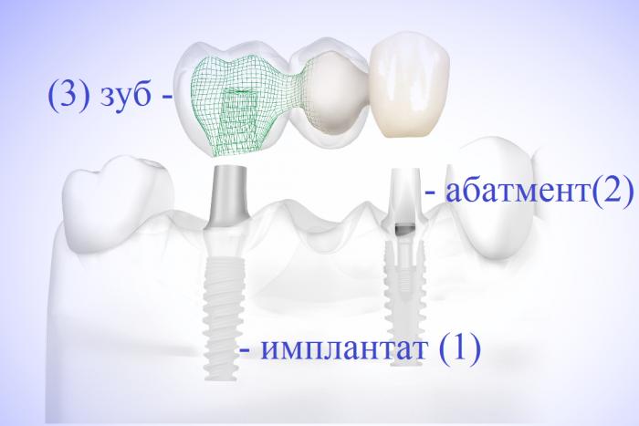 имплант, абатмент, зуб