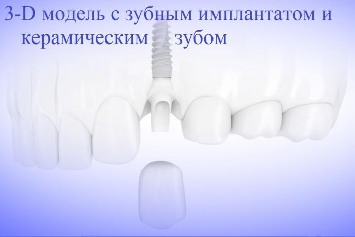 3D модель с зубным имплантом и керамическим зубом