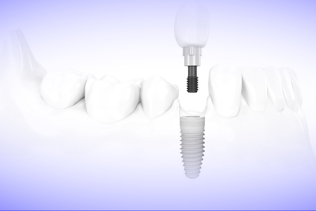 удаление зубов в Запорожье