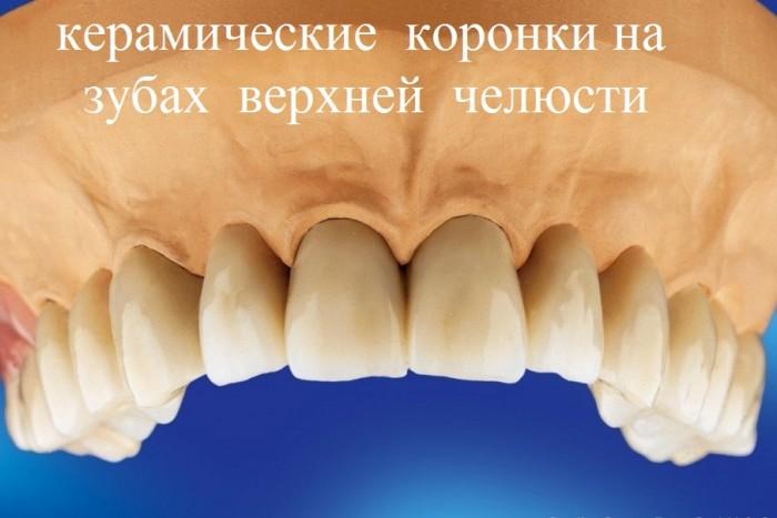 керамические коронки на зубах верхней челюсти