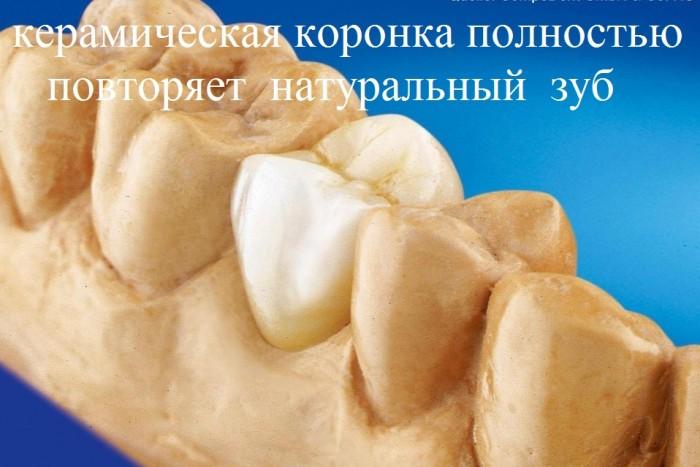 керамическая коронка полностью повторяет натуральный зуб