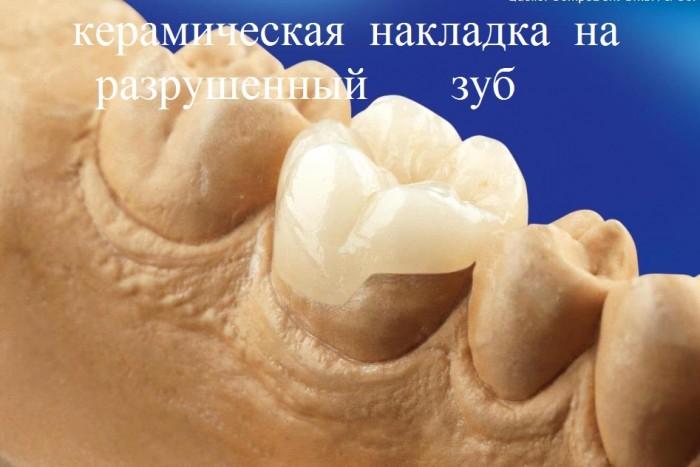 керамическая накладка на разрушенный зуб