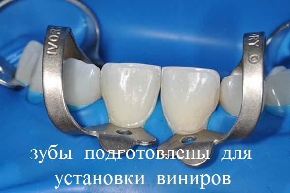 виниры на 4 передних зуба краснодар