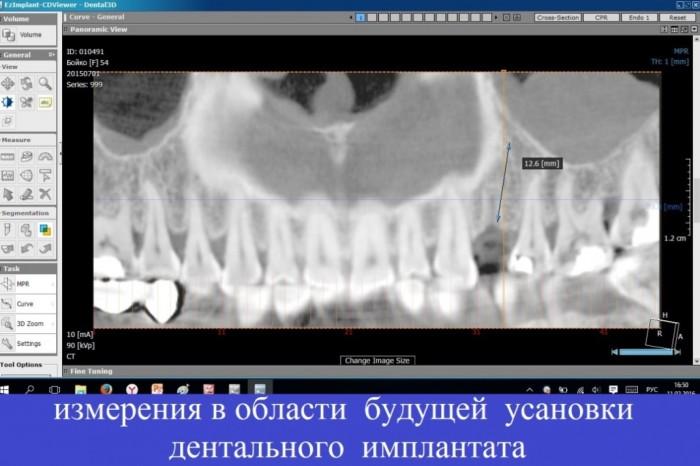 измерения в области будущей установки дентального импланта