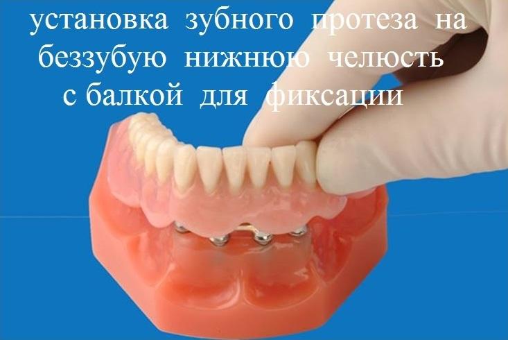 установка зубного протеза на беззубую нижнюю челюсть с балкой для фиксации