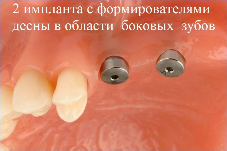 2 импланта с формирователями десны в области боковых зубов