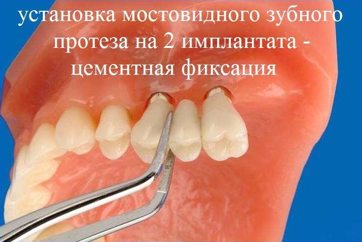установка мостовидного зубного протеза на 2 имплантата - цементная фиксация