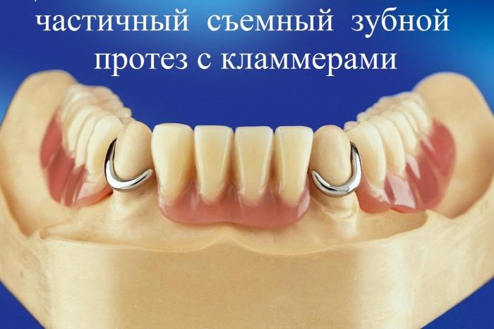 частичный съемный зубной протез с кламмерами