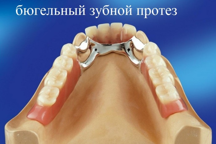 бюгельный зубной протез